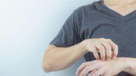 Mann kratzt seine Hand Juckreiz Ekzem - Besonders an den Händen sind Ekzeme sehr unangenehm. - © Shutterstock