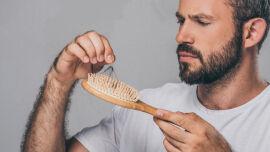 Haarausfall beim Mann - Haarausfall kann viele Ursachen haben. Bei Männern sind aber meist die Gene schuld. - © Shutterstock