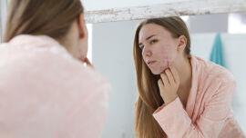 Akne_unreine Haut_shutterstock_1117632365 - Akne kommt in der Pubertät bei den meisten Jugendlichen vor – bei einigen sehr ausgeprägt, bei anderen nur milde.
